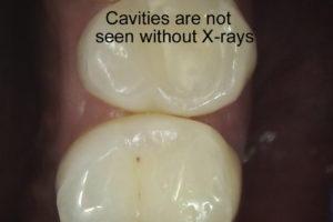 Once Cavities Are Exposed It Is Not Surprising That They Always Larger Than Look In X Rays This Because A 2 Dimensional