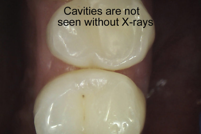https://childressdental.com/wp-content/uploads/2017/10/Cavities-are-not-seen-without-x-ray-1-768x512.jpg